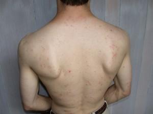 2003 Sapelo bug bites a